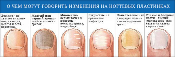Белые пятна на ногтях: что это?