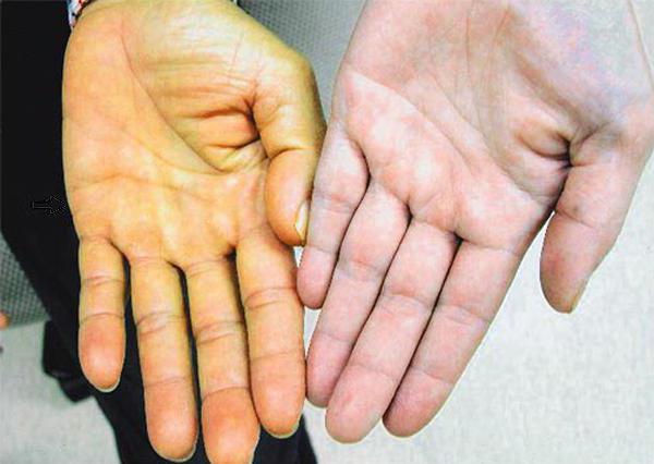 цирроз печени на руках признаки