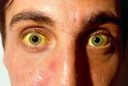 цирроз фото человека