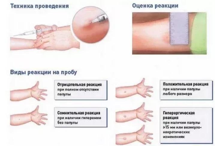 Если реакция манту уменьшается заявление на прикрепление ребенка к поликлинике москва
