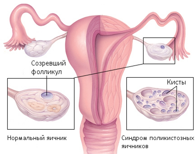 a discussion of premenstrual syndrome as a sex hormone in women Premenstrual disorders affect up to 12% of women the subspecialties of psychiatry and gynecology have developed overlapping but distinct diagnoses that qualify as a premenstrual disorder these include premenstrual syndrome and premenstrual dysphoric disorder.