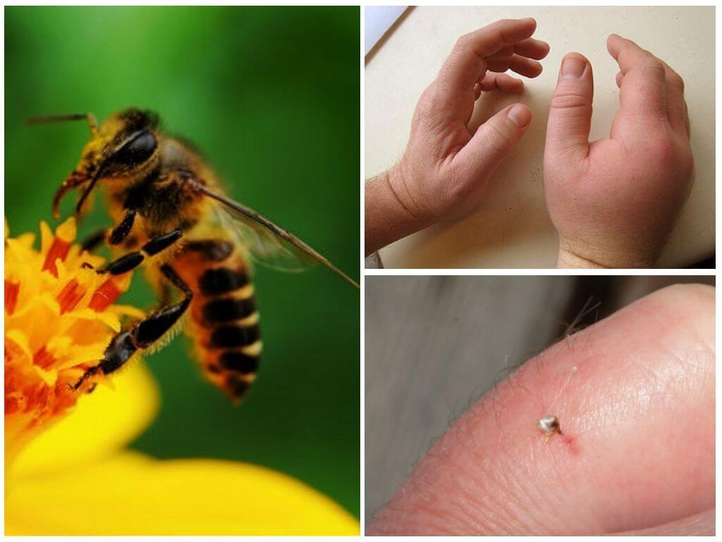 Фрейд писал, что пчела символизирует половые органы мужчины.